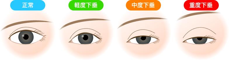 眼瞼下垂症例3000件以上、保険診療から眼瞼下垂の修正術まで